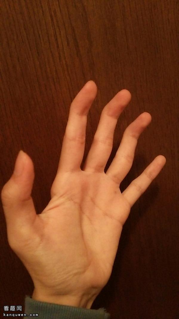 2ch翻译:你们的手指有办法弯成这样么