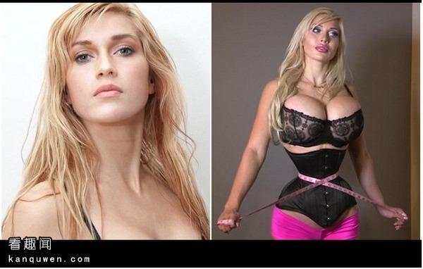 2ch:想要成为动漫美女切除了6根肋骨的女性引发热议
