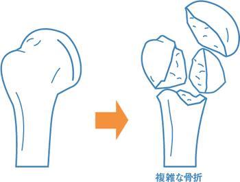 2ch:男友在用手指帮我弄的时候手指骨折了